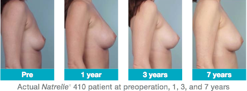410 breast photos
