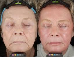 co2-laser-face