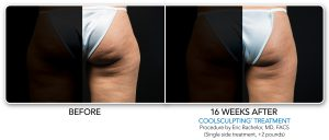coolsculpting-bna-1-1