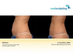 coolsculpting-bna-2