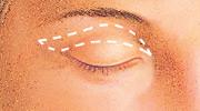 eyelid-series-2