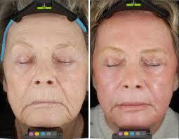 skin-resurfacingbna011