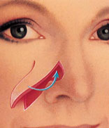 A bone/soft tissue flap is used to reconstruct the nose following skin cancer excision.