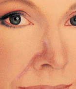 The incision lines of the flap are hidden within the natural creases of the nose and face.