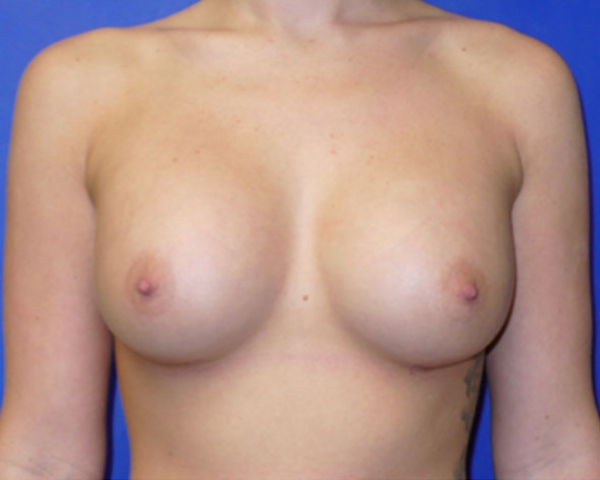 breast-aug-after